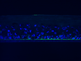 Laminin-5 expression at the membrane-tissue interface; immunostaining